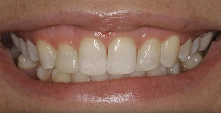 Video preview of a closeup on teeth showing how CMR is focused on aesthetics