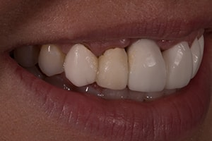 Left Lateral of an actual patient smile in the preoperative condition.