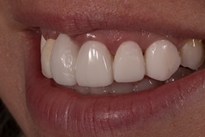 Right Lateral 1:2 of an actual patient smile in the preoperative condition.
