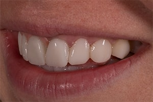 Right Lateral of an actual patient wearing temps from CMR Dental Lab in Idaho Falls.