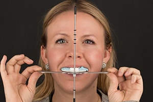 Face Bow Verification photo shows that the angle is straight on this patient's smile.