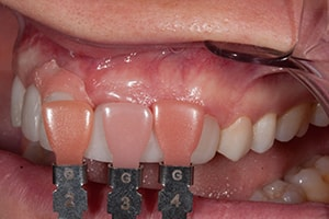 Gingival Color Shaders help match the patient's natural gum color.
