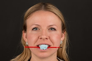 A Stick Bite Photo helps determine if the temps are straight on a patient's smile.